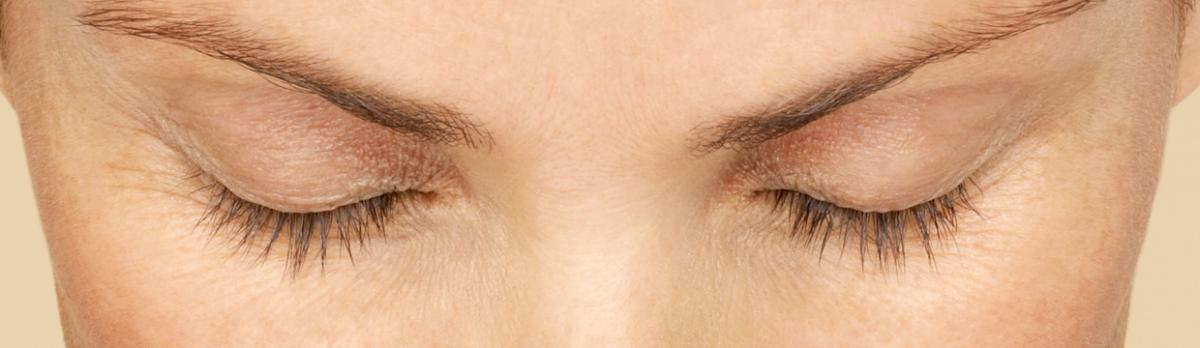Latisse - Before | InFocus Eye Care