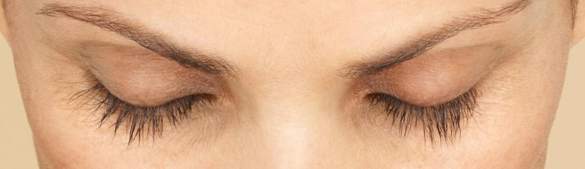 Latisse - After | InFocus Eye Care